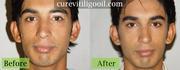 Cure Vitiligo curevitiligooil